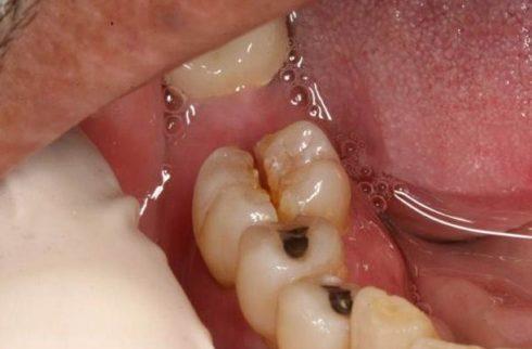 Chấm dứt tác hại của mất răng bằng phương pháp trồng răng implant 3