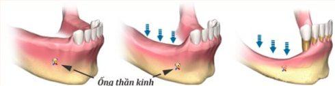 Chấm dứt tác hại của mất răng bằng phương pháp trồng răng implant 4