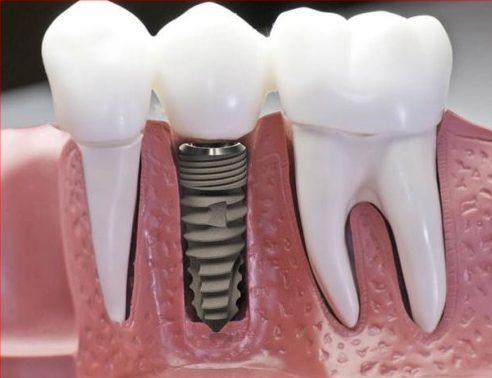 Chấm dứt tác hại của mất răng bằng phương pháp trồng răng implant 5