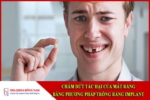 Chấm dứt tác hại của mất răng bằng phương pháp trồng răng implant