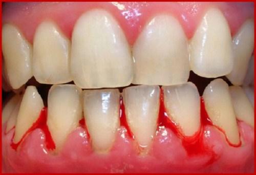 Chảy máu chân răng dấu hiệu báo động sức khỏe răng miệng1