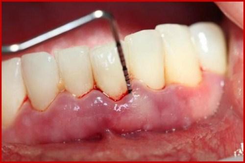 Chảy máu chân răng dấu hiệu báo động sức khỏe răng miệng 2