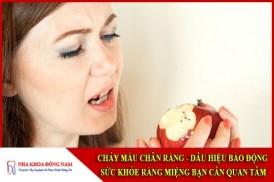 Chảy máu chân răng dấu hiệu báo động sức khỏe răng miệng