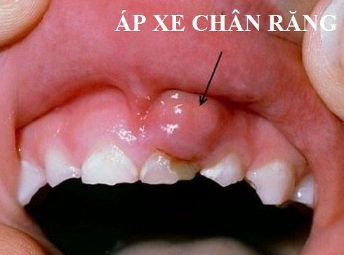 Chảy máu chân răng dấu hiệu báo động sức khỏe răng miệng 3