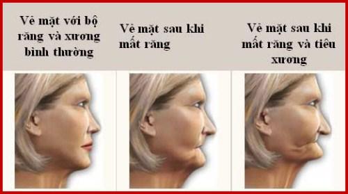 Chảy máu chân răng dấu hiệu báo động sức khỏe răng miệng 4