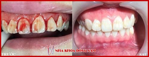 Chảy máu chân răng dấu hiệu báo động sức khỏe răng miệng 8