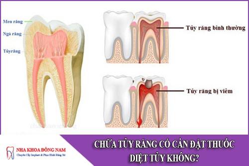 chữa tủy răng có cần đặt thuốc diệt tủy không