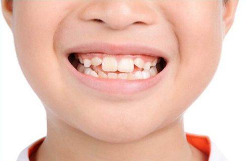 Có tẩy trắng răng cho răng nhiễm Flour được không 1