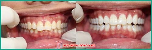 Có tẩy trắng răng cho răng bị nhiễm Flour được hay không 4