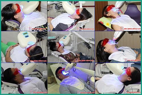 Có tẩy trắng răng cho răng bị nhiễm Flour được hay không 5