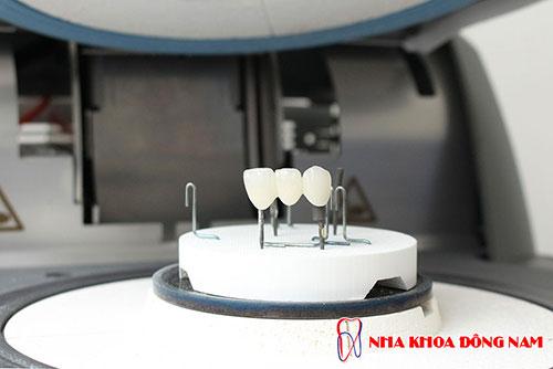 Labo răng sứ tại Nha Khoa Đông Nam 2