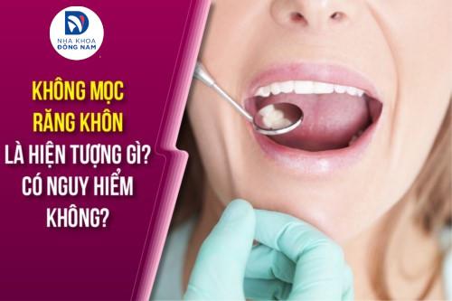 không mọc răng khôn là hiện tượng gì?