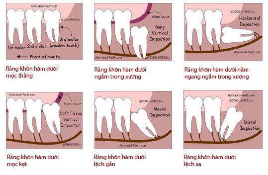 Răng khôn không mọc là hiện tượng gì 2