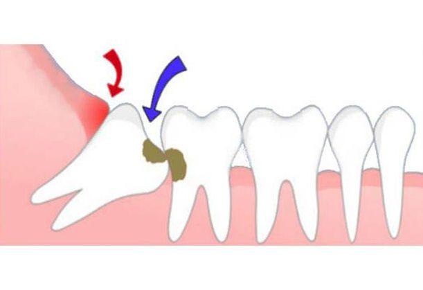 Răng khôn không mọc là hiện tượng gì 3