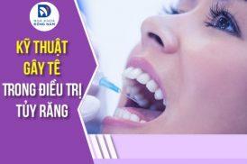 Kỹ Thuật Gây Tê Trong Điều Trị Tủy Răng