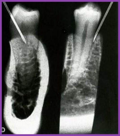Kỹ thuật gây tê trong điều trị tủy răng 2