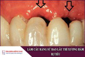 làm cầu răng sứ bao lâu thì xương hàm bị tiêu