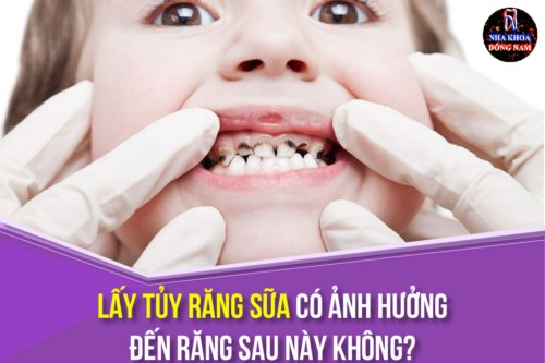 Lấy Tủy Răng Sữa Có Ảnh Hưởng Đến Răng Sau Này Không