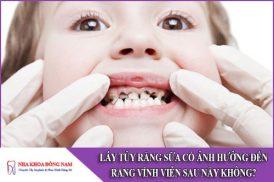 lấy tủy răng sữa trẻ em có ảnh hưởng đến răng vĩnh viễn sau này không