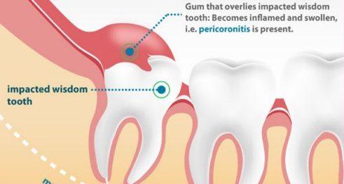 Liệu có an toàn không khi nhổ răng số 8 1
