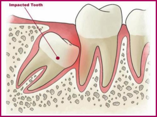 Liệu có an toàn không khi nhổ răng số 8 3