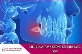 liệu có an toàn không khi nhổ răng số 8
