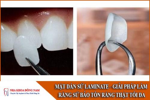 mặt dán sứ laminate giải pháp làm răng sứ bảo tồn răng thật