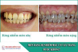 men răng bị nhiễm màu có tẩy trắng được không
