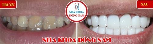 bọc răng sứ thẩm mỹ cho răng bị nhiễm màu