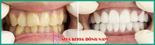 Men răng nhiễm màu có tẩy trắng răng được không 3