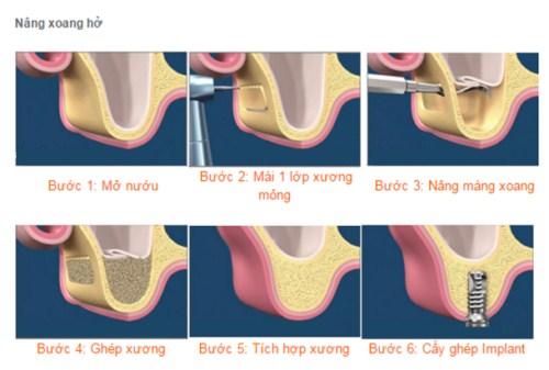 nâng xoang cấy ghép implant trong những trường hợp nào-5