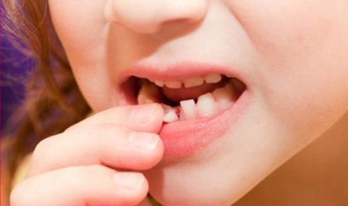 Nhổ răng sữa cho trẻ cần phải đúng thời điểm 2