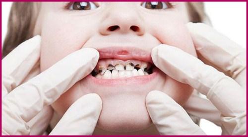 Nhổ răng sữa cho trẻ cần phải đúng thời điểm 4