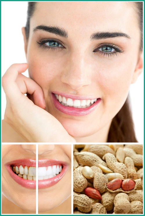 Tẩy Trắng Răng bằng lạc cực đơn giản 4