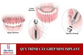 quy trình cấy ghép mini implant;