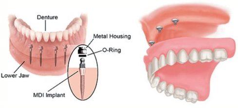 quy trình cấy ghép mini implant 6