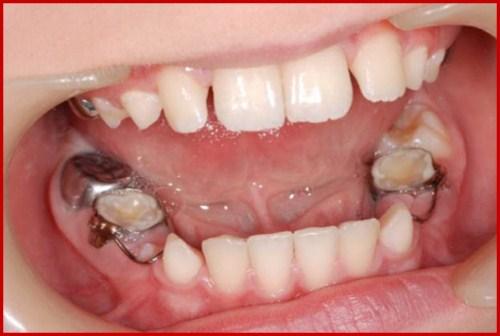 Răng bị nghiêng có cấy ghép implant được không 1