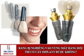 Răng bị nghiêng có cấy ghép implant được không