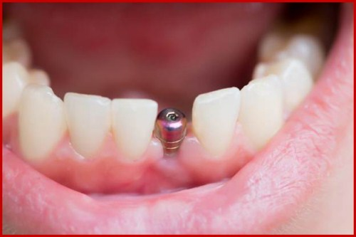 Răng bị nghiêng có cấy ghép implant được không 3
