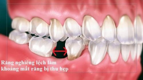 răng bị nghiêng vào vùng mất răng thì có cấy implant được không 1