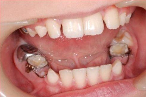 khắc phục tình trạng răng bị nghiêng