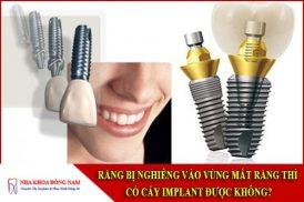 răng bị nghiêng vào vùng mất răng thì có cấy implant được không
