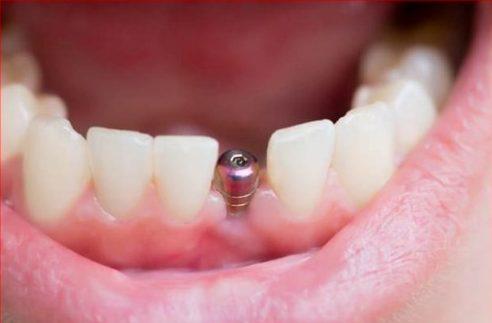 mất răng thì có cấy implant được không