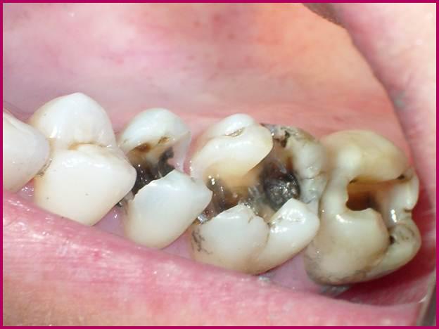 Răng hư phải nhổ đi thì có mọc lại được không