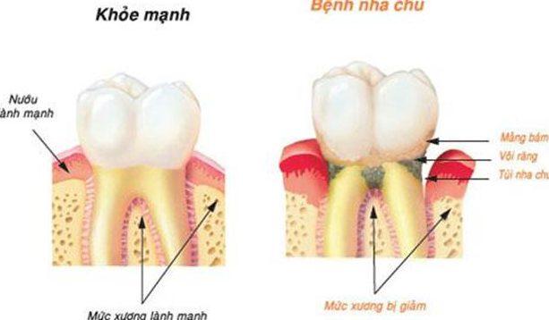 Răng hư phải nhổ đi thì có mọc lại được không 2