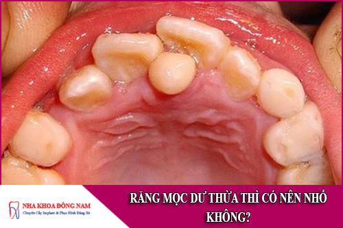 răng mọc dư thừa thì có nên nhổ không