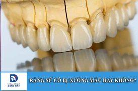 Bọc răng sứ có làm răng xuống màu không