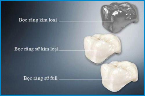 Bọc răng sứ có làm răng xuống màu không 3