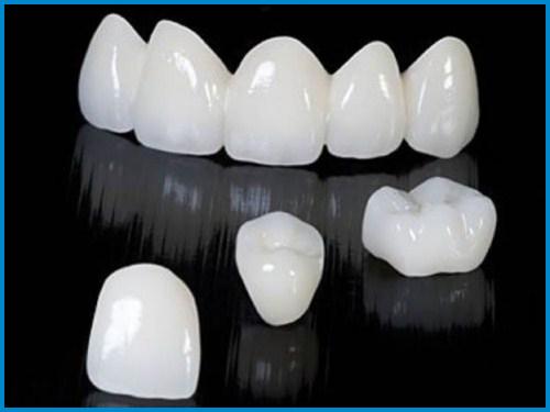 Bọc răng sứ có làm răng xuống màu không 4
