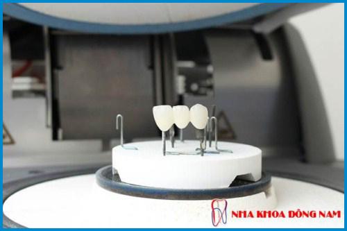 Bọc răng sứ có làm răng xuống màu không 5